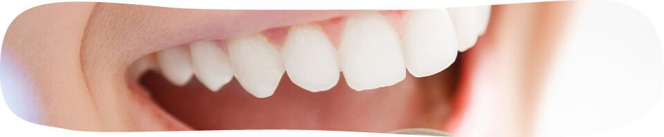 前歯だけの矯正