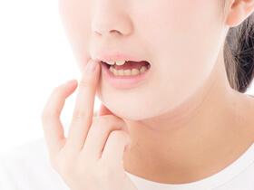 過去に治療した銀歯をなくしたい