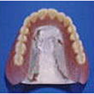 金属床(超精密義歯)