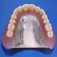 純チタン鋳造床義歯